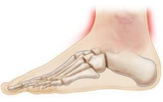 Лечение травм голеностопного сустава, ушиб голеностопа – симптомы и лечение