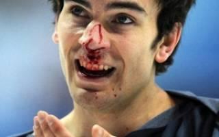 Лечение травм носа, какбыстро вылечить ушиб носа