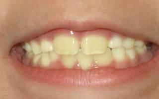 Желтый налет на зубах у ребенка: что это и как от него избавиться