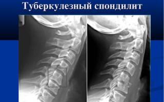 Боль в спине и высокая темпетарура 37 – 38: методы лечения и причины