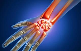 Ушиб лучезапястного сустава – симптомы и лечение