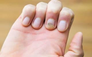 Бородавки у ногтя как лечить, народные средства от бородавок возле ногтя
