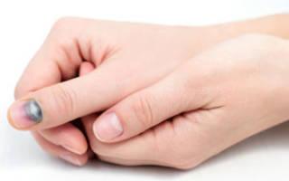 Что делать при ушибе ногтя, лечение ушибов ногтя на руке и ноге – мази и народные средства