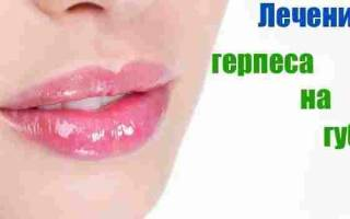 Народные способы лечения простуды, как лечить горло при простуде, что делать при простуде