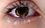 Аллергия на глазах – причины, симптомы, лечение, народные средства