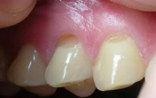 Как правильно чистить зубы: советы, рекомендации, видео