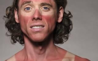 Чем мазать ожог от солнца, средства от солнечных ожогов – мази, народные рецепты