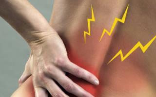 Болит поясница при ходьбе и стоянии, методы лечения боли в спине при ходьбе