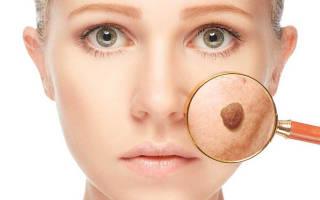 Чем удалить папилломы на лице без следа, лечение папиллом на лице народными средствами