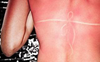Солнечный ожог, маленькие пузырики, волдыри – лечение, средства