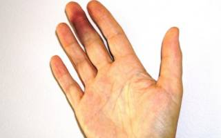 Ушиб пальца руки – симптом и лечение, как лечить ушиб фаланги пальца