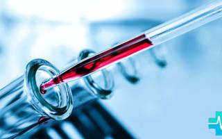 Повышен билирубин в крови – причины у взрослых и лечение