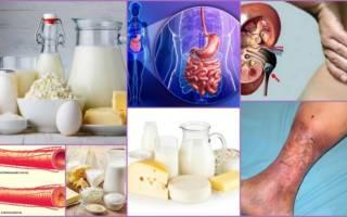 Влияют ли на целлюлит молочные продукты
