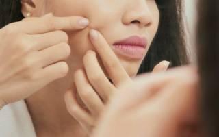 Почему появляются прыщи на лице у женщин после 30-35 лет и как с ними бороться