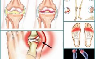 Плоскостопие 2 степени с артрозом 2 стадии особенности заболевания симптомы и лечение