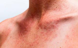 Лечение аллергии народными средствами: рецепты отвара, чая и настойки из листьев крапивы от аллергии