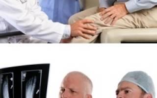 Что такое ортопедия, зачем нужен ортопед взрослым, когда нужна консультация ортопеда, советы по выбору хорошего ортопеда