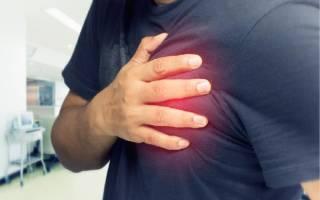 Что такое стенокардия, признаки стенокардии, как распознать приступ стенокардии