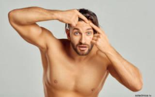 Как избавиться от прыщей мужчине, причины и лечение прыщей у мужчин