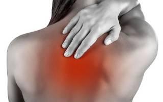 Боли в области лопатки и шеи – причины, лечение