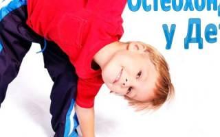 Остеохондроз шеи у детей: причины, диагностика и лечение