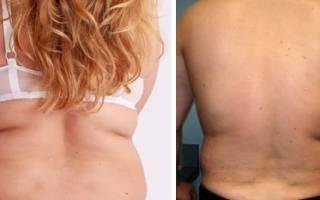 Почему появляются жировые отложения на спине Как убрать жир со спины- Sport-At-Home