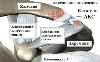 Симптомы вывиха ключицы, лечение травмы АКС