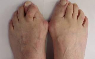 Вальгусная деформация пальцев ноги причины симптомы и лечение