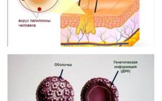Йод от бородавок, удаление йодом бородавок: лечение, противопоказания