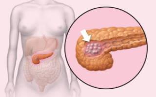 Ожирение поджелудочной железы: причины, симптомы и методы лечения