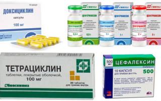 Какие антибиотики принимать при воспалении десен и корней зубов: список и группы препаратов