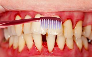 Причины кровоточивости десен, как лечить кровоточивость десен во время чистки зубов