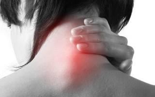 Шишка на шейном позвонке при остеохондрзе: причины, лечение