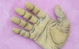 Онемение правой руки: причины, лечение и что делать, если онемеют пальцы правой руки