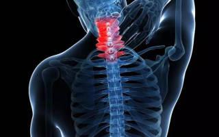 Хрустит шея и болит голова при поворотах: причины, лечение