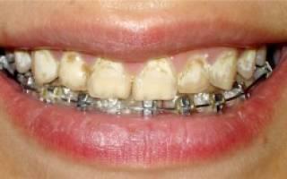 Можно ли лечить зубы с брекетами – кариес, как предотвратить болезнь