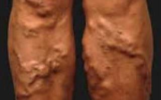 Классификация и стадии варикозного расширения вен