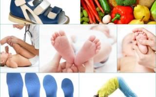 Как лечить плоскостопие у детей 10-14 лет в домашних условиях