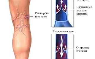 Отчего при варикозе чешутся и зудят ноги, как облегчить это состояние