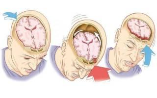 Признаки сотрясения головного мозга, последствия сотрясения головного мозга, лечение сотрясения головного мозга в домашних условиях