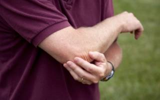Что делать при ушибе локтя, лечение ушиба локтевого сустава – мази и народные средства