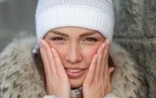 Почему горит лицо – причины, симптомы и способы убрать покраснения