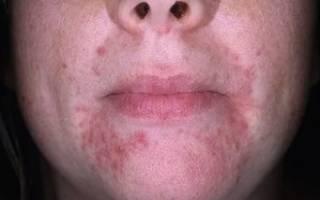 Прыщи вокруг рта – причины, основные виды, лечение