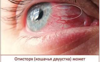 Симптомы паразитов в организме: как выявить наличие паразитов у человека