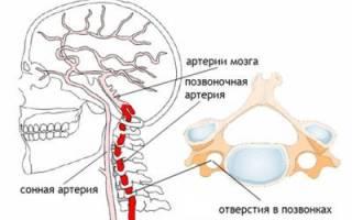 Головная боль при шейном остеохондрозе: чем снять, причины и лечение