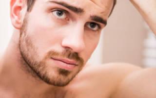 Почему выпадают волосы у мужчин в раннем возрасте, причины выпадения волос у мужчин до 25 лет
