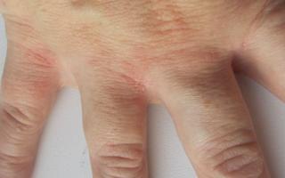 Шелушение между пальцами рук – причины и способы лечения
