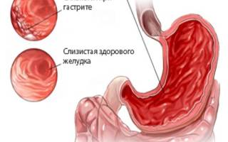 Лечение гастрита медом – польза, рецепты, противопоказания