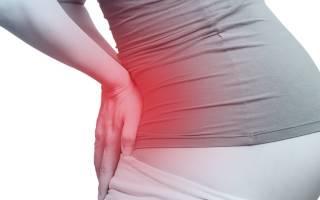 Болит копчик после родов: причины, лечение, диагностика