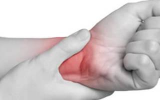 Симптомы, причины и лечение тромбофлебита верхних конечностей